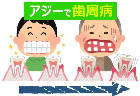 アジー1000mg通販で歯周病に使用
